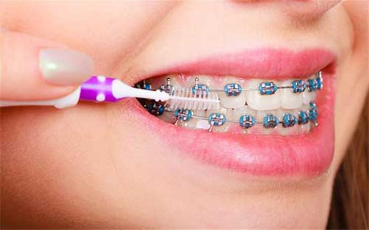 Ace Dental Group image 3