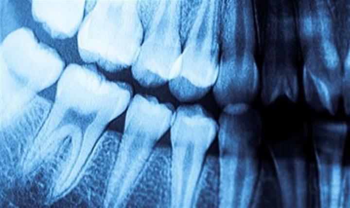Perfect Dental image 5