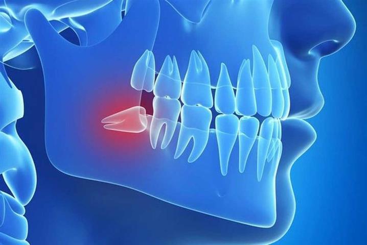 Smile Avenue Dental Group image 6