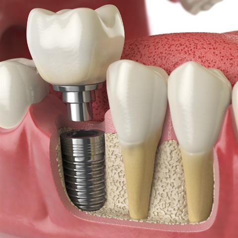 Brighter Smile Dental image 3