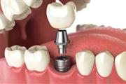 Ace Dental Group thumbnail 4