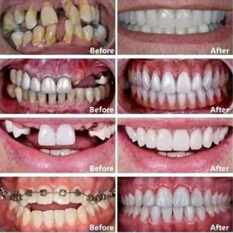 Do you need a dentist? image 2