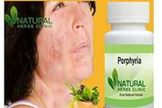 Herbal Product for Porphyria