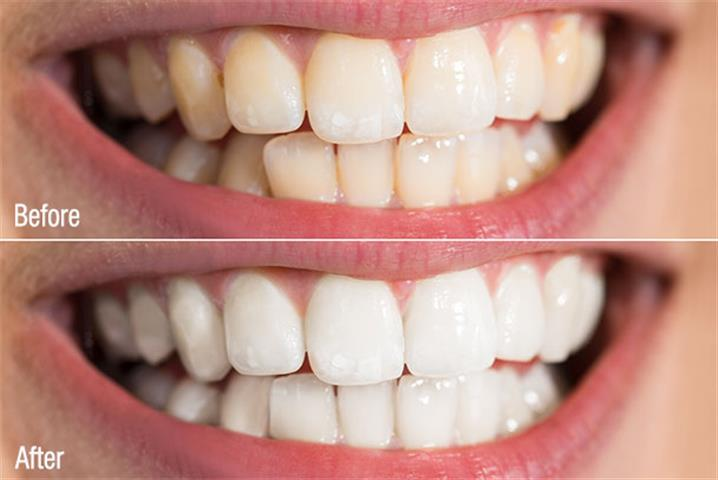 Dental Spa of Artesia image 3