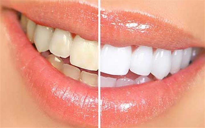 Ace Dental Group image 5