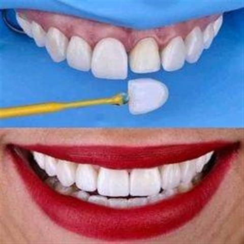 Do you need a dentist? image 3