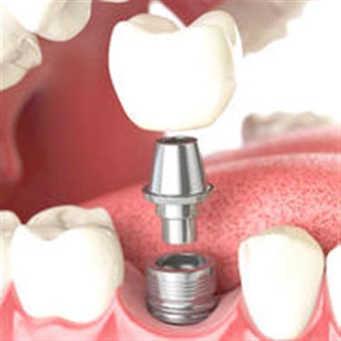 Happy Smiles Dental Clinic image 2