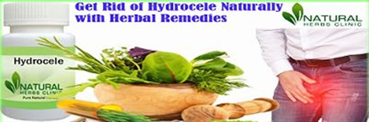Herbal Products for Hydrocele image 1