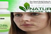 Natural Remedies for Acne is a useful natural tre
