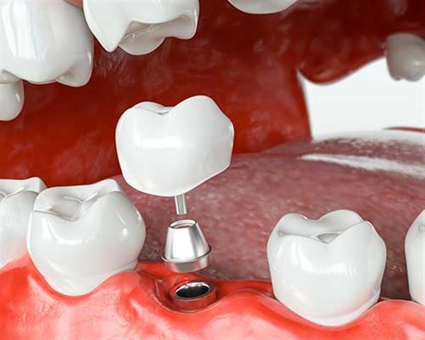 Smile Avenue Dental Group image 5